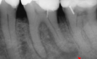 A kíméletes fogimplantátum készítése